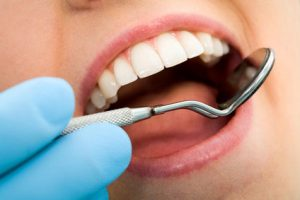 Periodontal Disease in Brooklyn